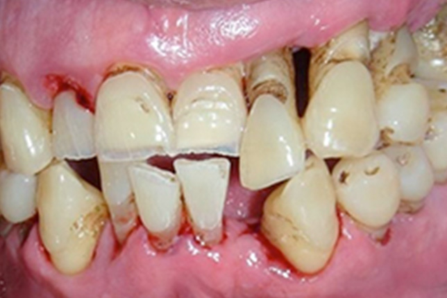 2 Day Clinical Occlusion and the Management of Tooth Wear in General Dental Practice (11/09/20)