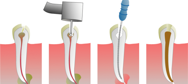 Root_Canal_Illustration (1)